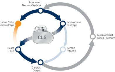 How CLS works