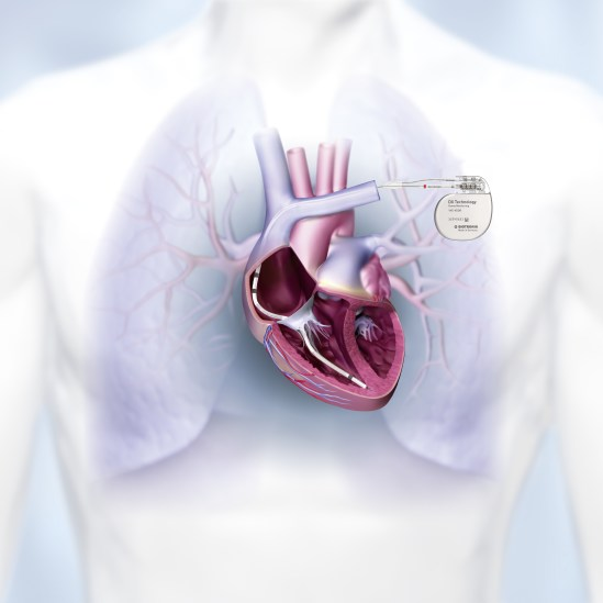Single chamber ICD system with complete atrial diagnostics